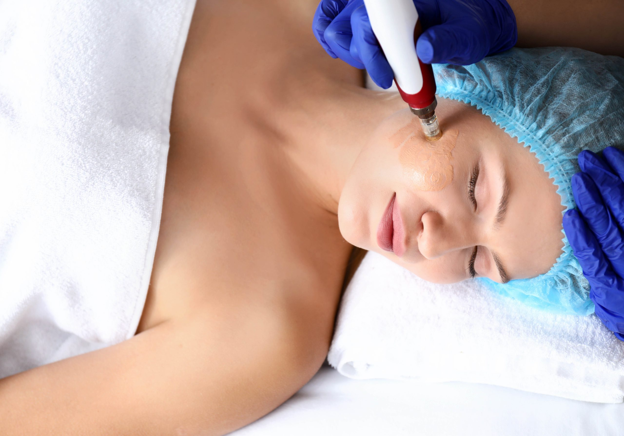 Young,Woman,Undergoing,Procedure,Of,Bb,Glow,Treatment,In,Beauty